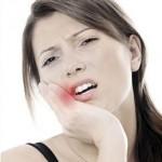 Флюс: от возникновения до лечения дома и у стоматолога