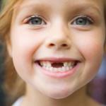 Рекомендации по безболезненному удалению молочных и коренных зубов