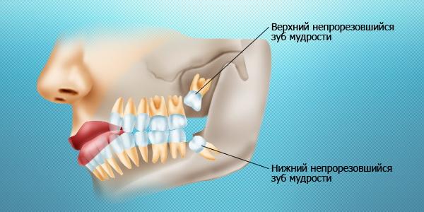 зуб мудрости схема