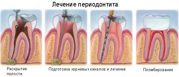 периодонтит