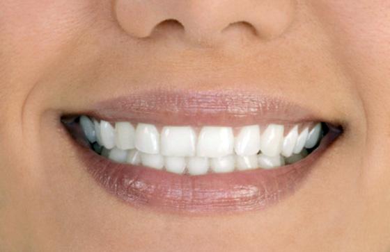 протезирование зубы металлокерамика фото