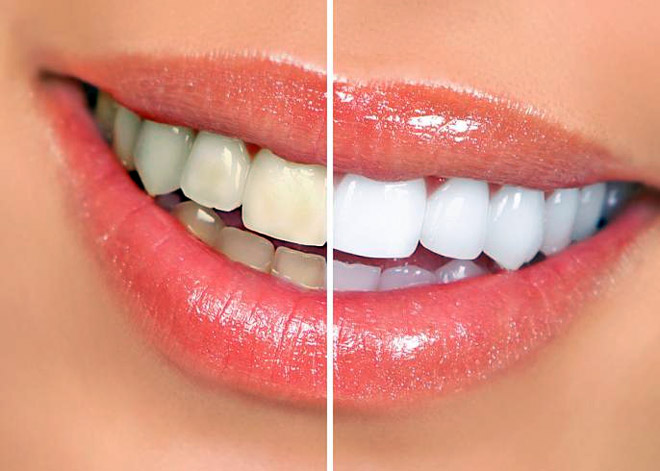 лучшая паста для отбеливания зубов