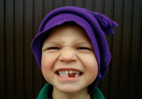 что делать если выпадают зубы
