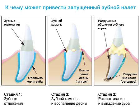 зубной налет как удалить в домашних условиях