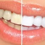 как отбелить безопасно зубы в домашних условиях