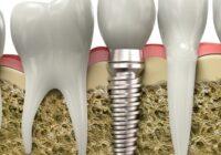 Имплантация зубов плюсы минусы