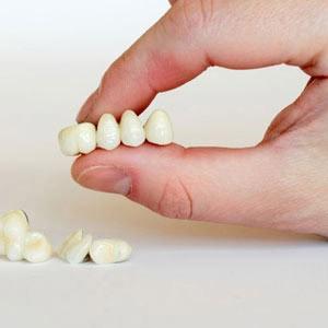 подготовка к протезированию зубов металлокерамика