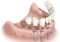 протезирование зубов для пожилых людей