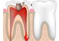 пульпит зуба как лечат