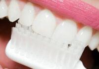 зубной налет как удалить