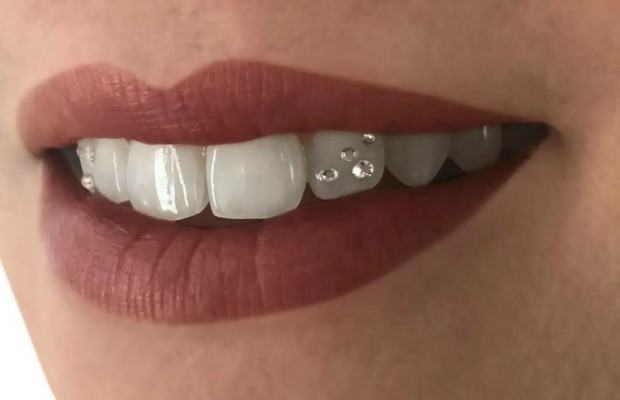 Зубы с украшениями