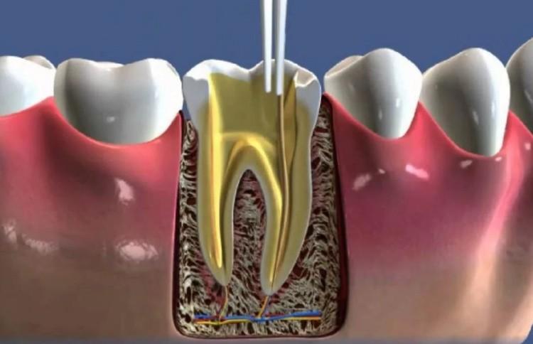 лечение системы корневых каналов зубов