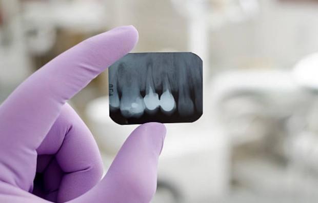 Корни зубов