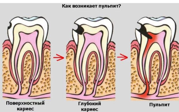 Пульпит зуба развитие