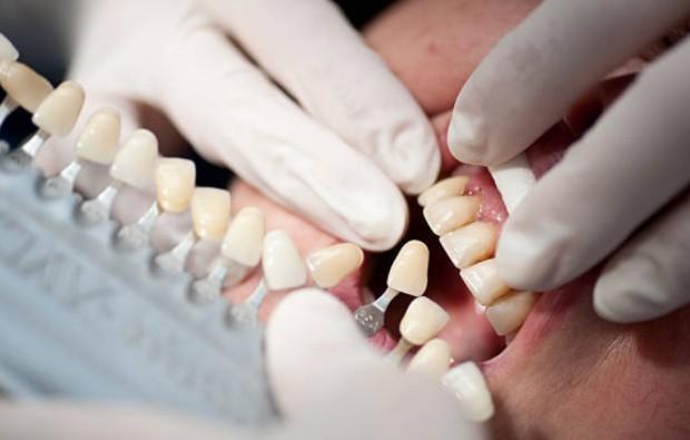 Реставрация зубов виниры