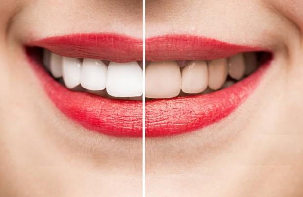 Профессиональная чистка зубов до и после