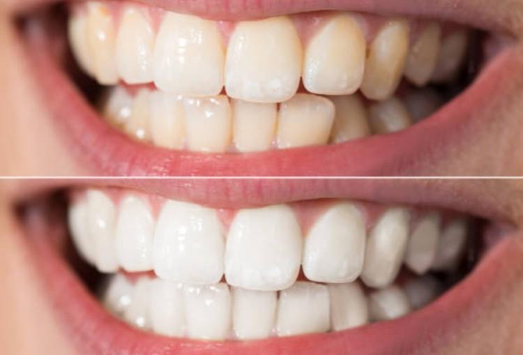 отбеливание зубов до и после фото реальные