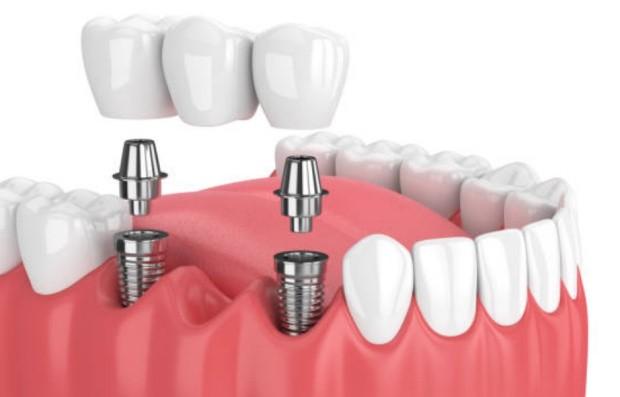 Восстановление зубов имплантаты